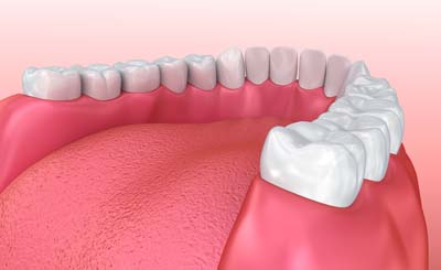 What Are Dental Crowns &#   ; Bridges?
