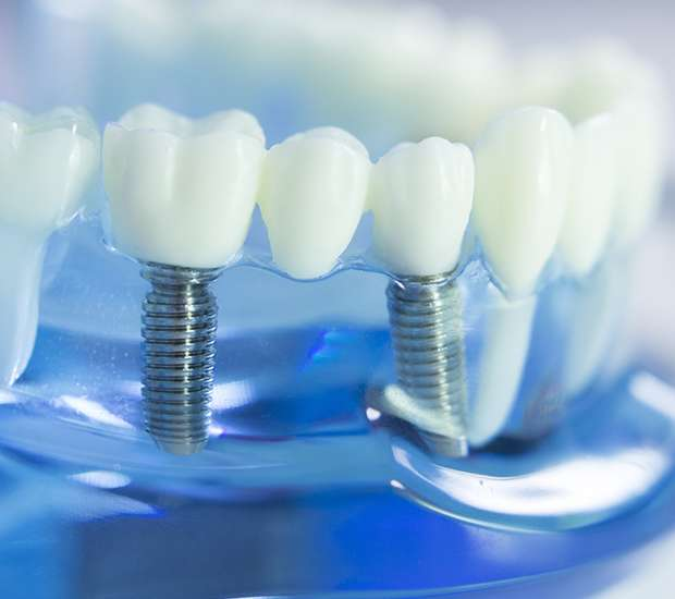 Milwaukee Dental Implants
