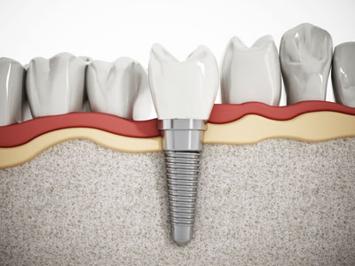 Are Dental Implants Possible After Bone Loss?