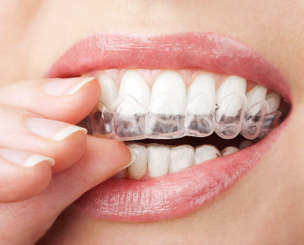 Is Invisalign® The Best Option For Me?